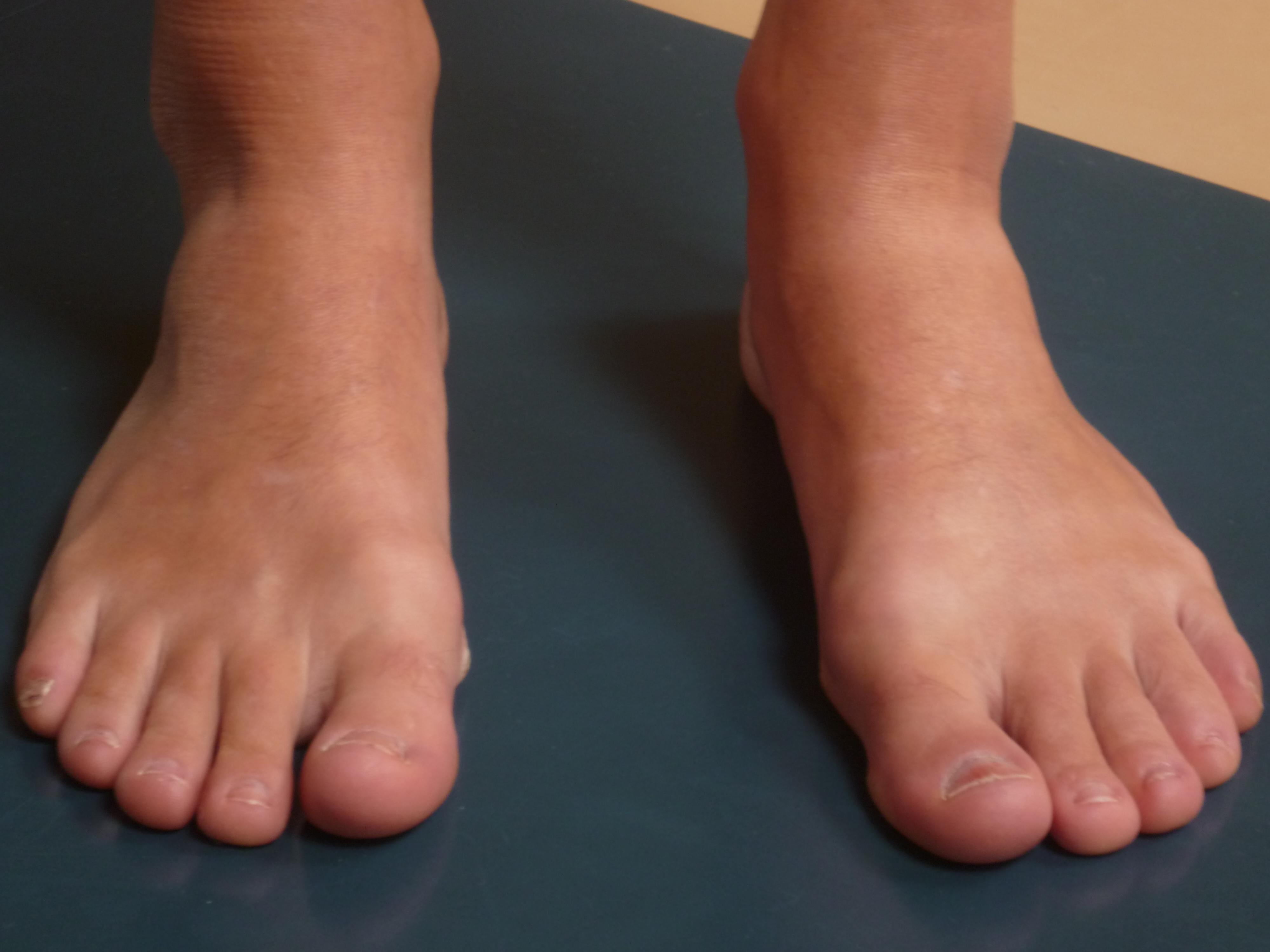 gezwollen enkels en voeten